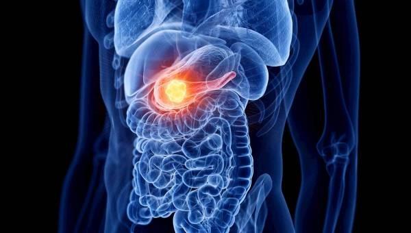 cancerul pancreatic simptome